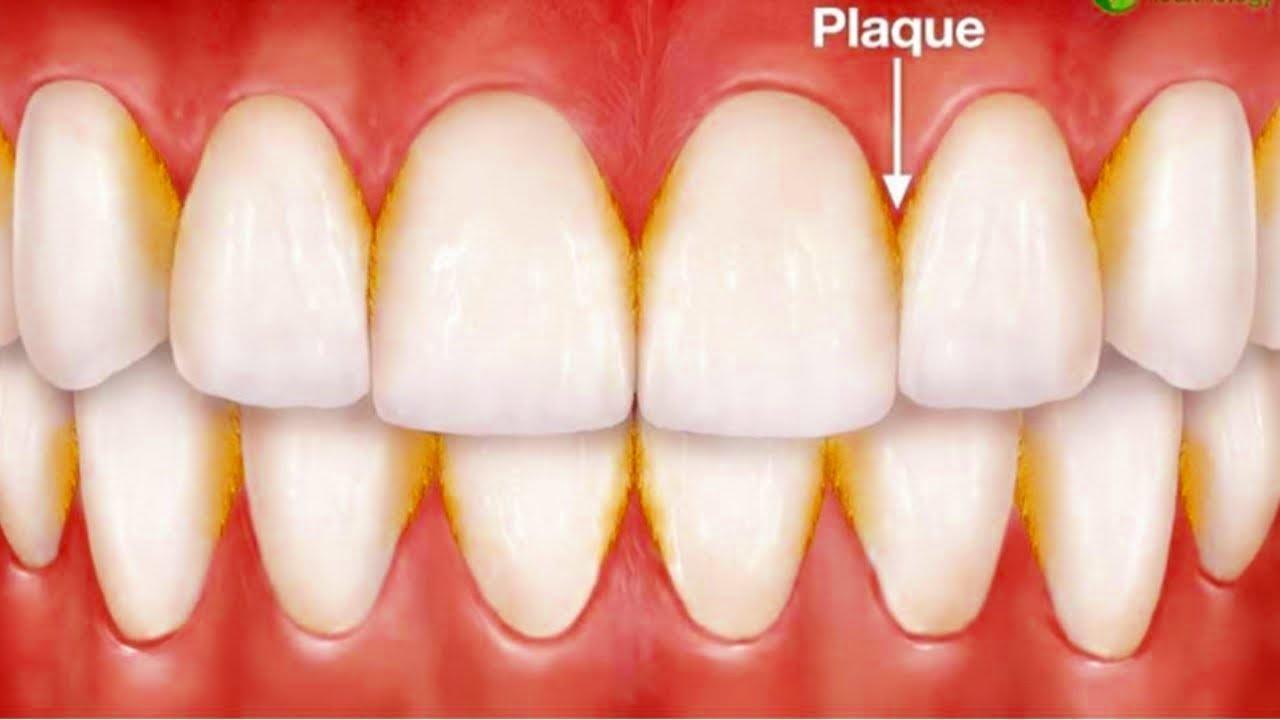Удаление зубного налета